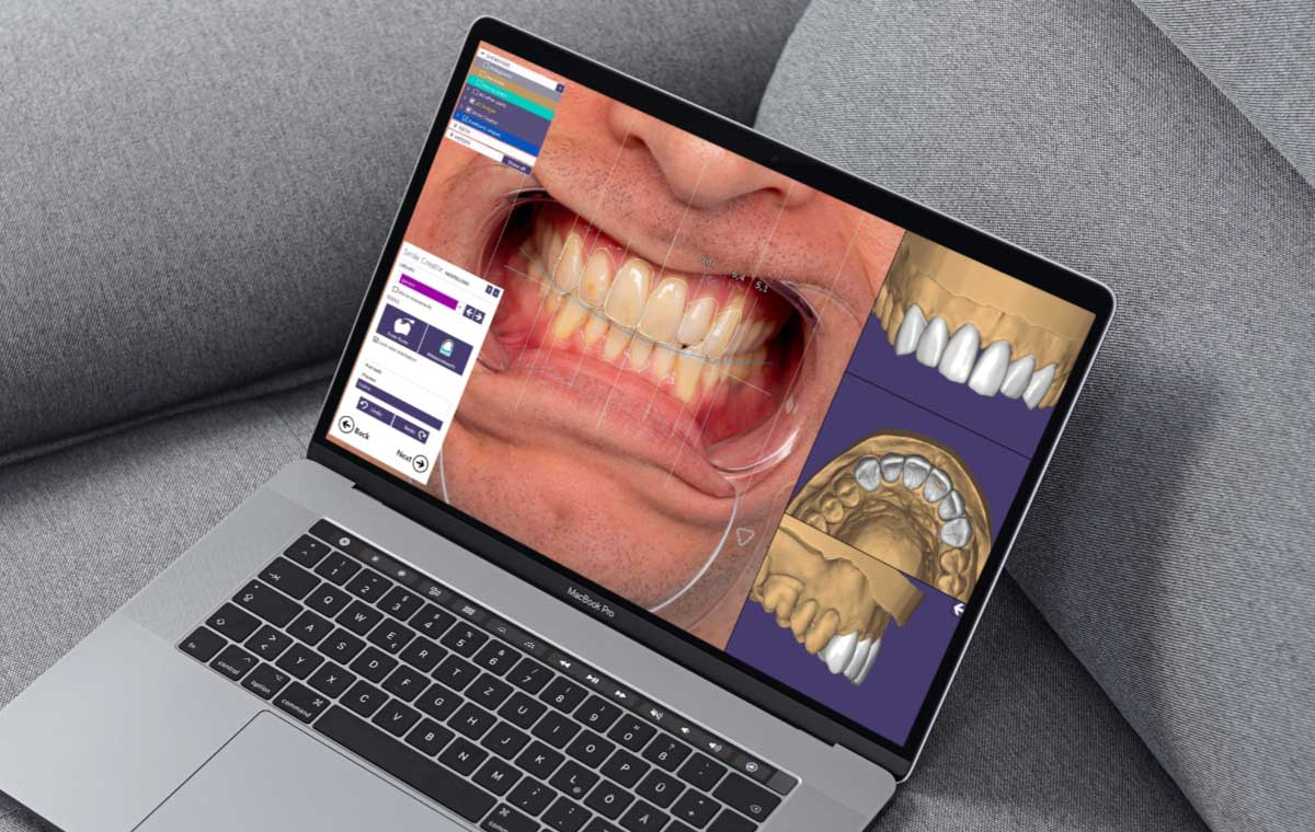 Exocad Smile Creator - Digital Smile Design CAD CAM